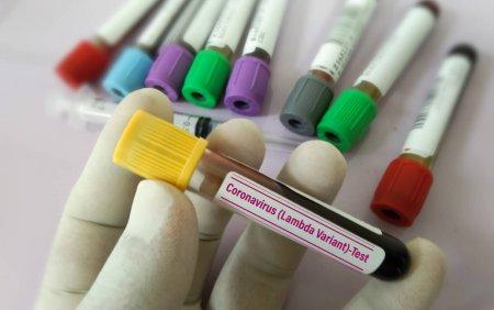 Coronavirus Romania, bilant 31 august. Ultimele raportari cu privire la evolutia infectarilor