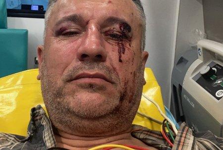 Un activist de mediu si doi jurnalisti, batuti crunt in judetul Suceava, cand filmau un material despre taierile ilegale de paduri