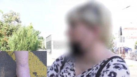 O pacienta din Oradea a<span style='background:#EDF514'>CUZA</span> ca a fost sedata cu o doza de 8 ori mai mare. Asistentele ar fi refuzat sa-i dea calmante