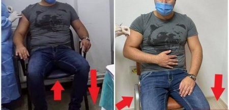 Primarul din Radauti a facut o sedinta foto in care a simulat ca se vaccineaza anti-COVID