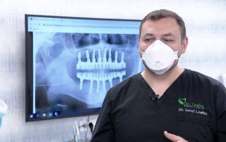 Implanturile, modalitatea eficienta prin care oamenii isi recapata dantura, distrusa de fumat