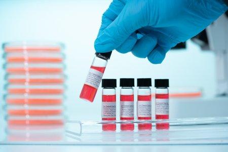<span style='background:#EDF514'>NOII</span> aliati ai vaccinului in lupta cu virusul. Ce efect au anticorpii monoclonaci si noile medicamente
