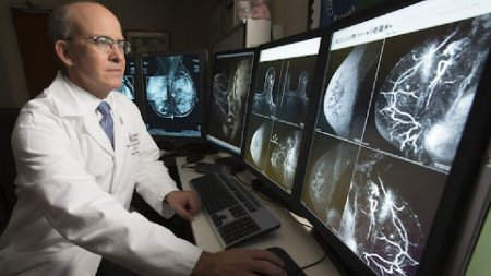 A fost descoperita substanta care ar putea fi responsabila de cresterea incidentei cancerului la san