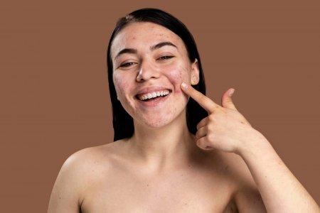 Totul despre acnee: cauze, simptome, <span style='background:#EDF514'>TIPURI</span>, diagnostic, preventie, tratament