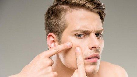 Top cauze si tratament acnee: totul despre acnee la adolescenti si adulti